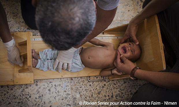 Pétition : Le Yémen connaît aujourd'hui la pire crise humanitaire au monde, aidons les enfants à sortir du cercle infernal de la faim !