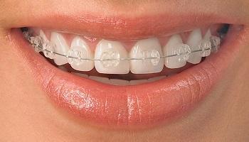 Pétition : Pour une meilleure reconnaissance de la spécialité d'orthodontie