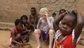 Pétition : Stop à la maltraitance des enfants en Centrafrique !