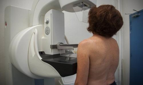 Pétition : Assez de souffrance lors d'une mammographie