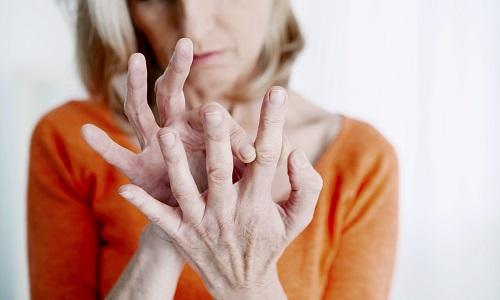 Pétition : Non au déremboursement des traitements contre l'arthrose !