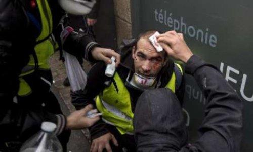 Pétition contre l'utilisation d'armes offensives interdites et mutilantes en France